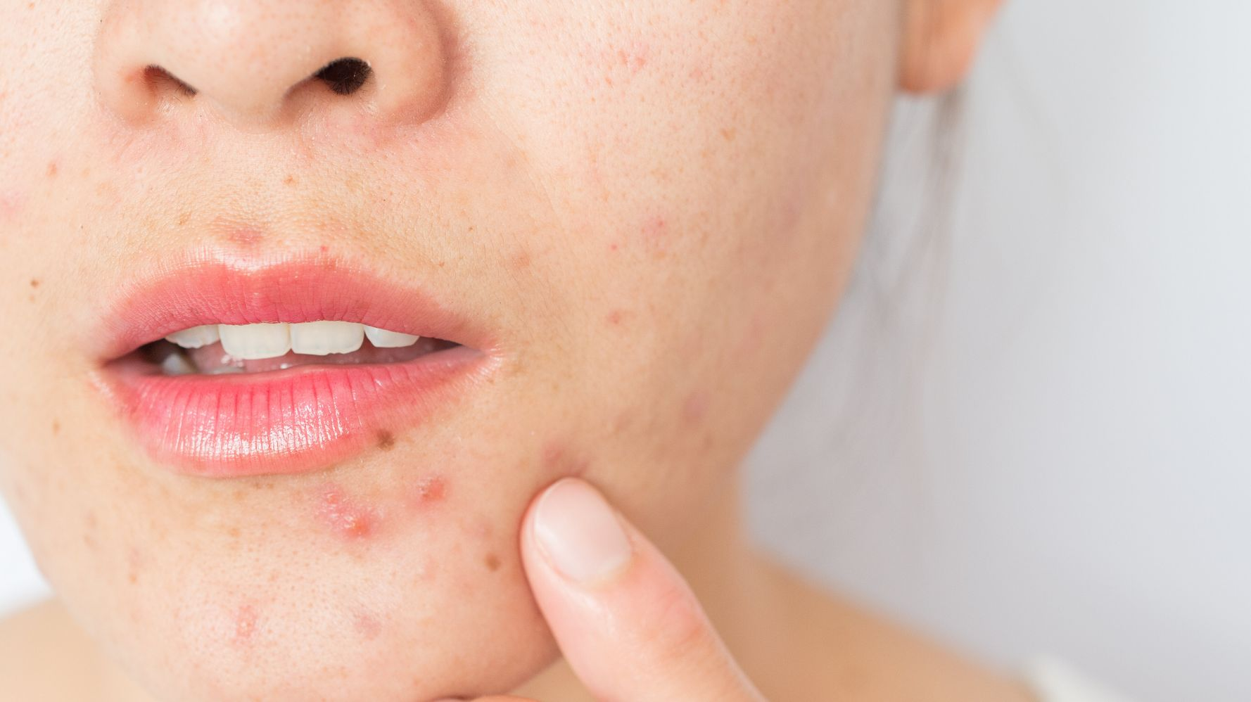 Maskné: tout ce qu'il faut savoir sur l'acné causée par le masque |  HuffPost Québec Vivre