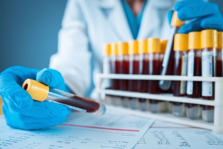 Blood can be tested for coronavirus antibodies.