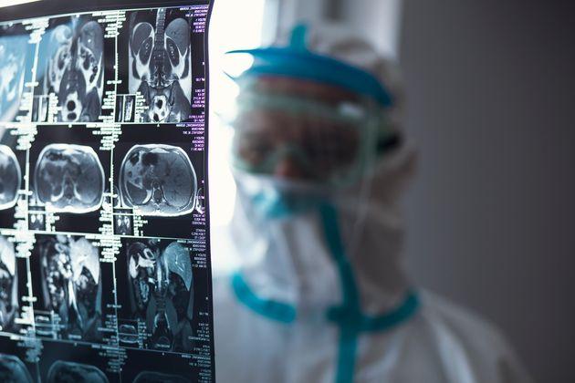 Οι «κρυφές» ζημιές του κορονοϊού ακόμη και σε ασθενείς με ήπια