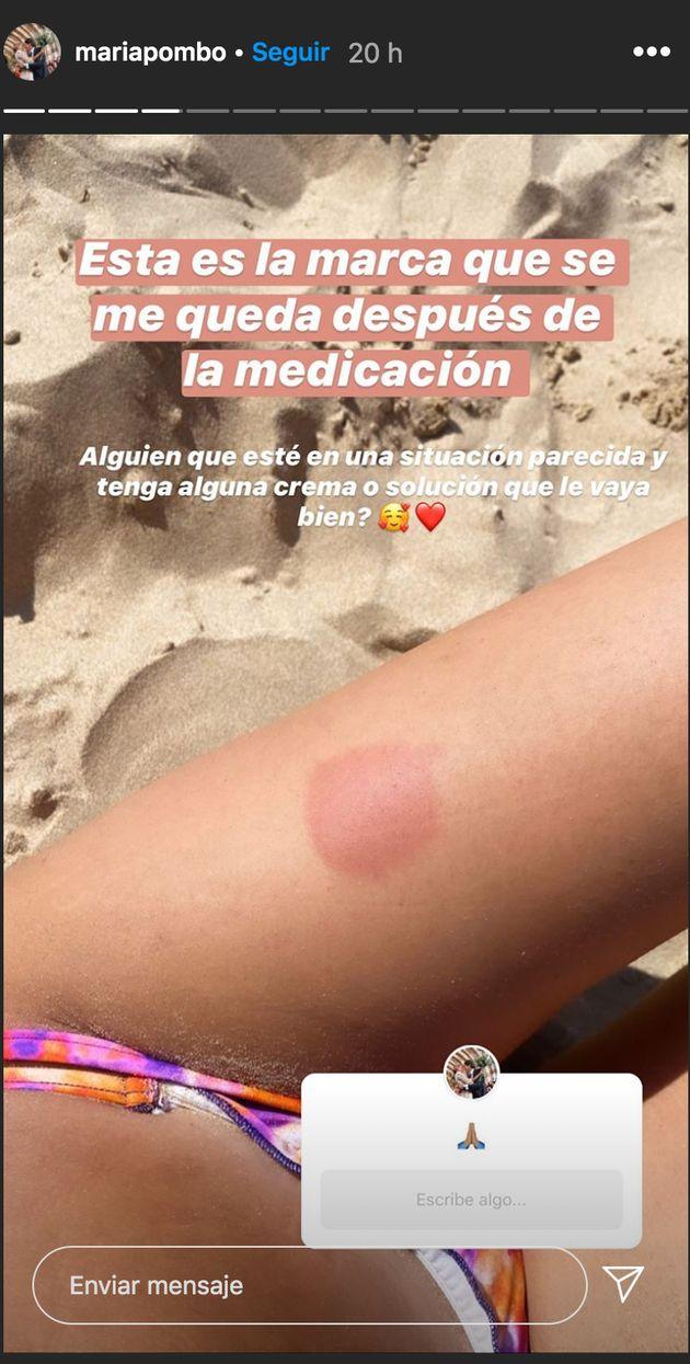 María Pombo muestra uno de los efectos secundarios del tratamiento contra la esclerosis