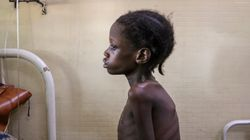 Coronavirus-Linked Hunger Tied To 10,000 Child Deaths Each