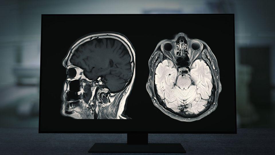 Alterações cognitivas possivelmente associadas à covid têm sido chamadas de...