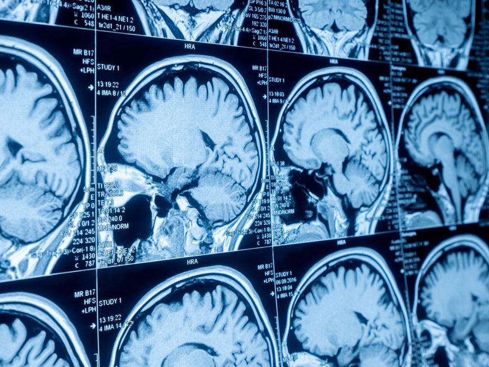Estudo da Unicamp com ressonância magnética em pacientes que tiveram covid-19 poderá...