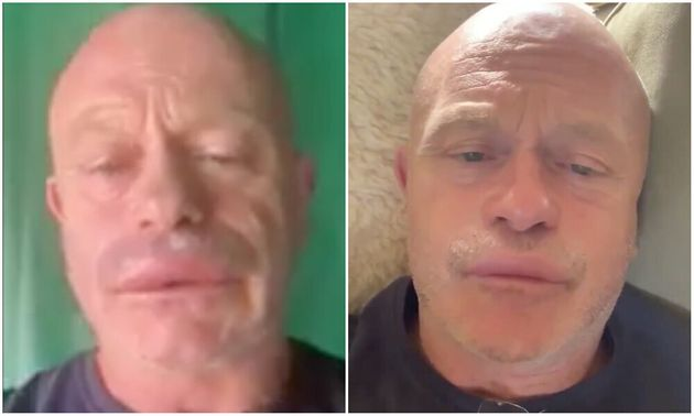 Ross Kemp Reveals Extreme Swollen Lip After Being Stung In Wasp Attack