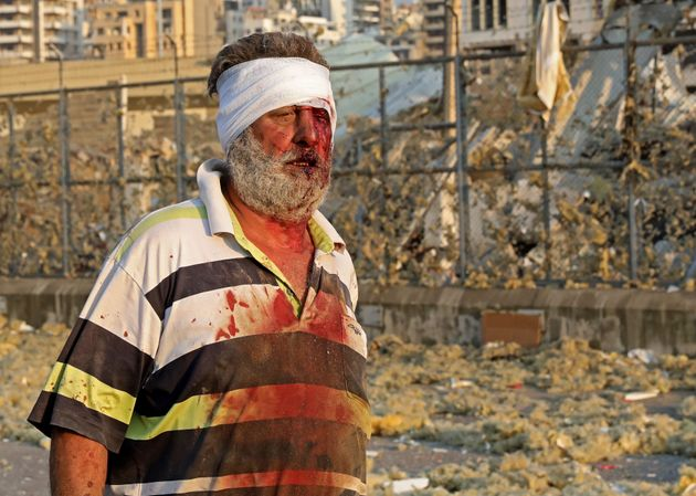 Λίβανος: Εκρηξη τρομακτικής ισχύος συγκλόνισε τη Βηρυτό - Στους 100 οι νεκροί, χιλιάδες