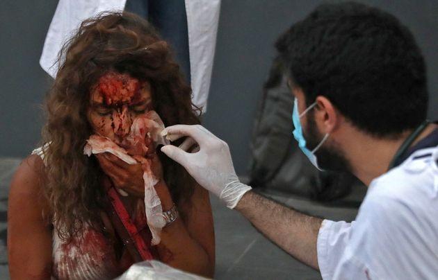 4일 베이루트 시내 한 병원 밖에서 부상자가 치료를 받고