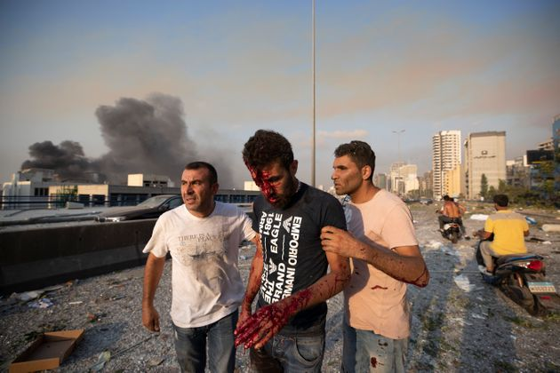 People help a man who was wounded in a massive explosion in Beirut, Lebanon, Tuesday, Aug. 4, 2020. (AP...