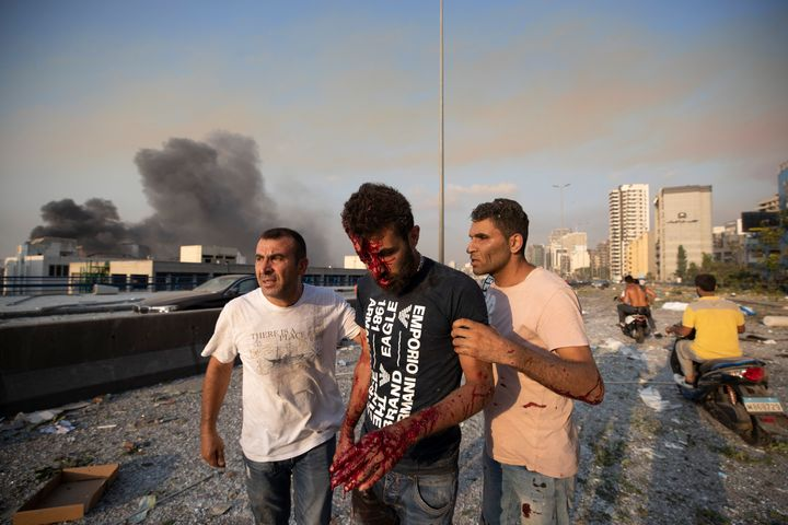 People help a man who was wounded in a massive explosion in Beirut, Lebanon, Tuesday, Aug. 4, 2020. (AP Photo/Hassan Ammar)