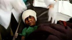 29 παιδιά νεκρά σε αεροπορική επιδρομή της Σαουδαραβικής Συμμαχίας στην Υεμένη - Χτύπησαν