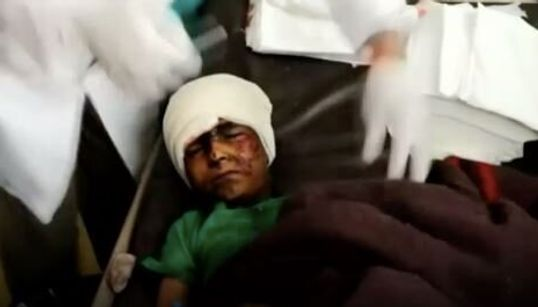 29 παιδιά νεκρά σε αεροπορική επιδρομή της Σαουδαραβικής Συμμαχίας στην Υεμένη - Χτύπησαν λεωφορείο