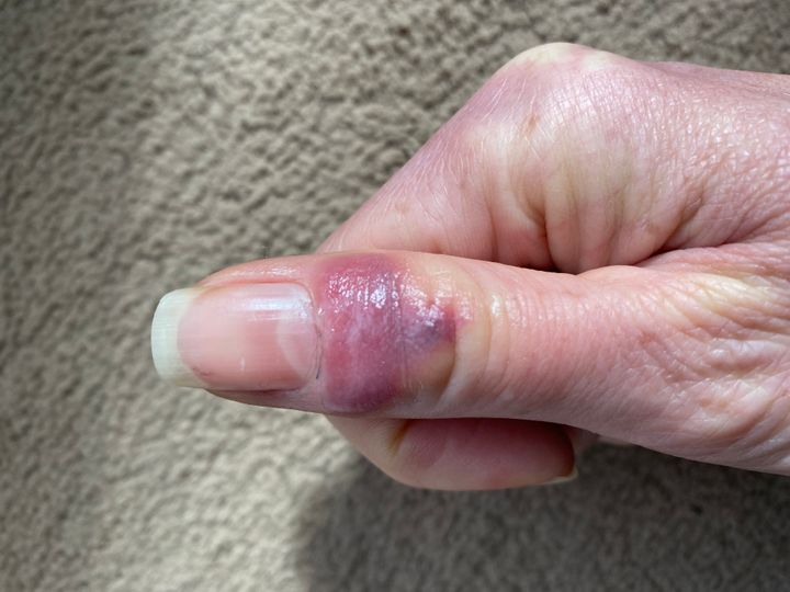 9 Photos Showing What 'COVID Fingers And Toes' Can Look Like