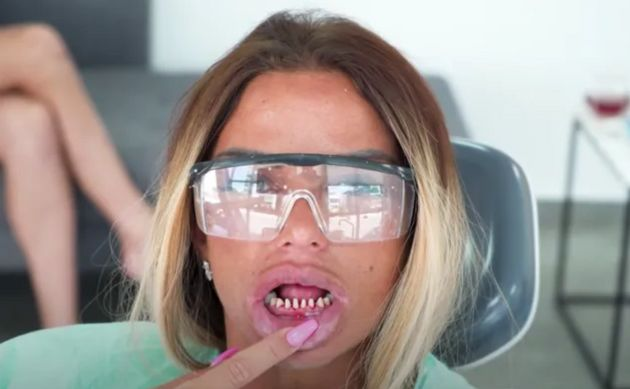 Katie Price Compares Herself To James Bond Villain Jaws As She Gets Teeth Replaced