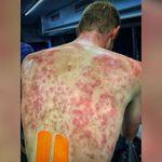 Γαλλία: Ποδηλάτες αποκόμισαν τρομακτικά σημάδια από χαλάζι σε μέγεθος