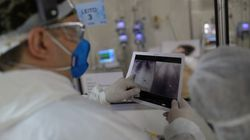 Mortes por covid-19 ultrapassam 107 mil; diagnósticos somam 3,3