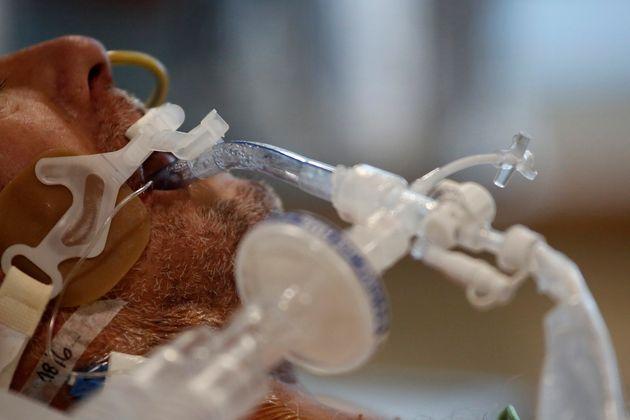 Persona intubada en la UCI a causa de la covid-19 en