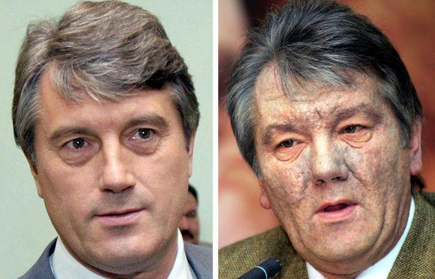 Viktor Yushchenko en julio y en diciembre de 2004, antes y después de ser