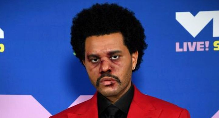 The Weeknd looked battered at the VMAs but it was just makeup for artistic effect.