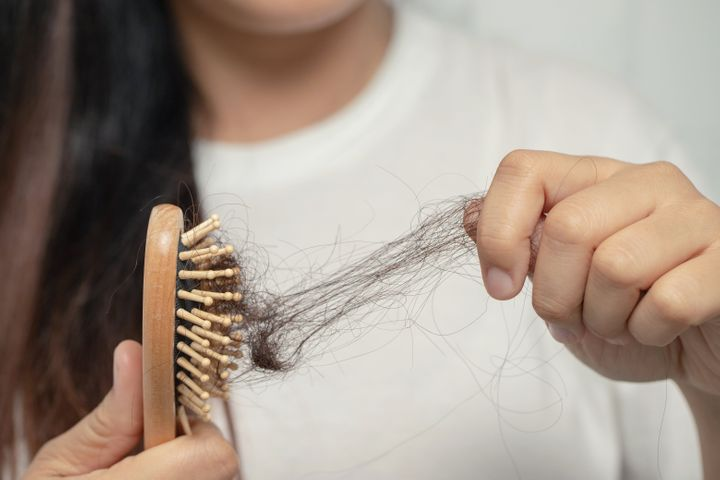 """Even if you hair is falling out, it might not actually be considered """"hair loss."""""""