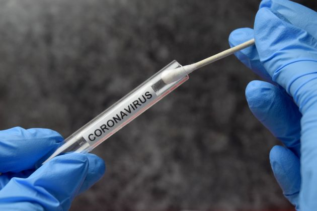Mass Coronavirus Testing Plans 'Could Cost Up To £100bn'