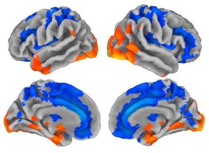 아민 라즈나한 연구팀의 논문에 수록된 이미지. 22~35살 남녀 488명씩의 뇌를 분석해 하나의 뇌 표면과 단면으로 그려낸 그림이다. 윗줄은 좌뇌와 우뇌의 표면이고, 아랫줄은 각각 좌뇌와 우뇌의 단면이며 좌와 우는 세로축을 중심으로 대칭된다. 파란색의 회백질 영역에서는 통상 여성이 남성보다 부피가 크게 나타나며 주황색 영역은 반대로 남성이 여성보다 부피가 더 크게 나타나는 것으로 조사됐다. 하나의 뇌 이미지에 여성의 뇌와 남성의 뇌에서 상대적으로 회백질이 발달한 부위를 함께 표시함으로써 남녀의 뇌가 다르다는 점을 강조한다. 이러한 해부학적 차이는 남녀의 능력 차이를 설명하는 원인이기보다 성별에 따라 다르게 외부의 영향을 받은 결과일 수 있다.