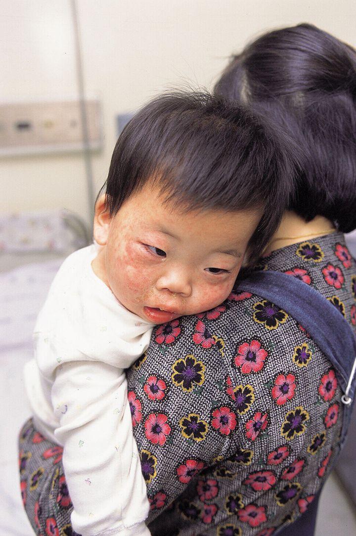 바이러스에 대한 약간의 방심도 다시금 질병의 대유행을 불러오는 불씨가 될 수 있다. 홍역의 경우, 이미 효과 좋은 백신이 개발되어서 1990년대 이전에 종식될 것으로 예측되었으나 백신에 대한 불신과 거부 운동의 확산으로 재유행하기 시작했다. 2001년 강창광 기자가 찍었다.