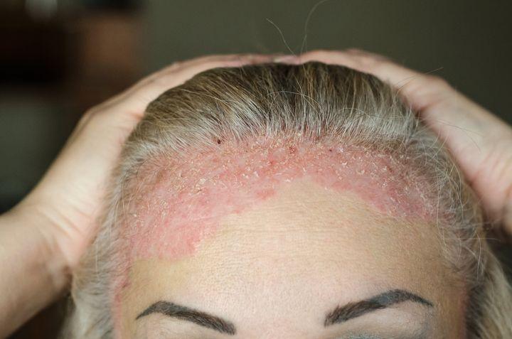 Psoriasis sévère au niveau du cuir chevelu.