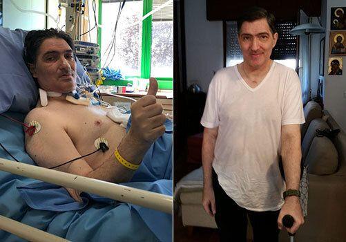 Don Franz dopo l'operazione ai polmoni e in una foto scattata in questi