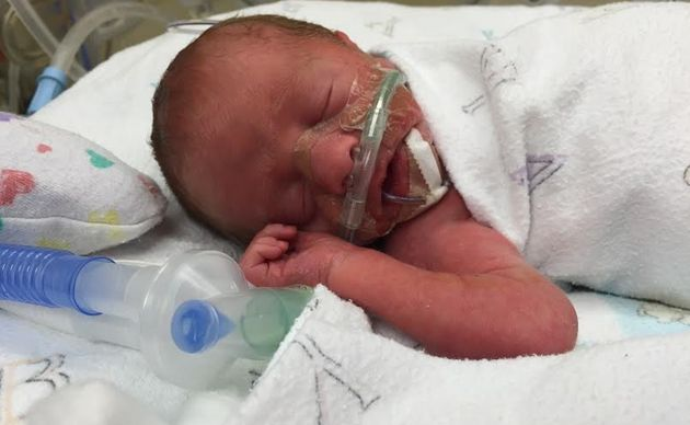 CA in the neonatal intensive care unit on Sept. 14, 2015, the day he was born.