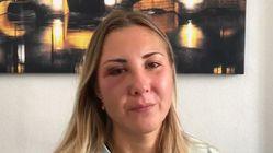 Enquête ouverte à Strasbourg où une étudiante a été frappée par des hommes lui reprochant sa