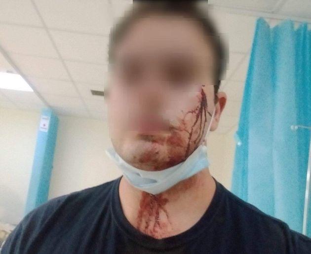 Άγρια επίθεση σε αστυνομικούς επειδή τους χάλασαν το