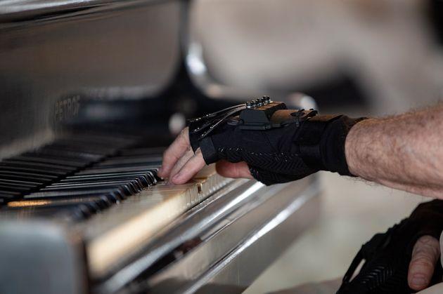 マルティンスさんが装着するバイオニック技術を使った手袋(AP Photo/Andre