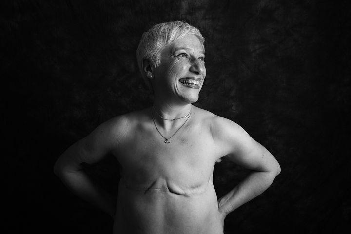 잉글랜드 하트퍼드셔에서 온 줄리엣 피츠패트릭(57세)은 2016년 왼쪽 가슴에 유방암 진단을 받았다.