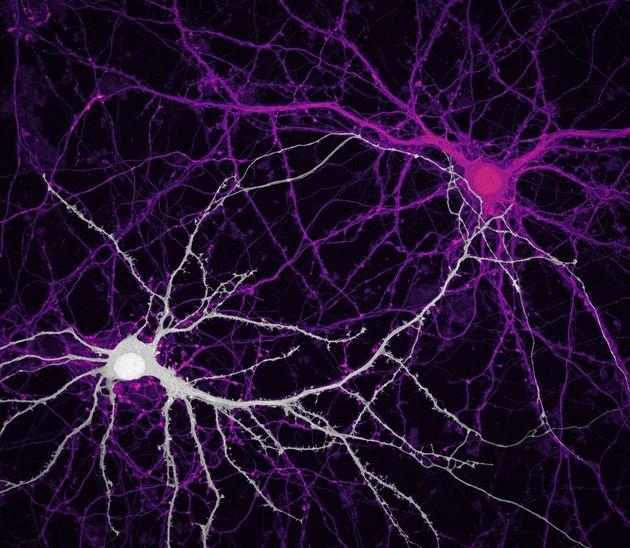 Jason Kirk & Quynh Nguyen/Baylor College of Medicine/Optical Imaging & Vital Microscopy Core/Houston,...
