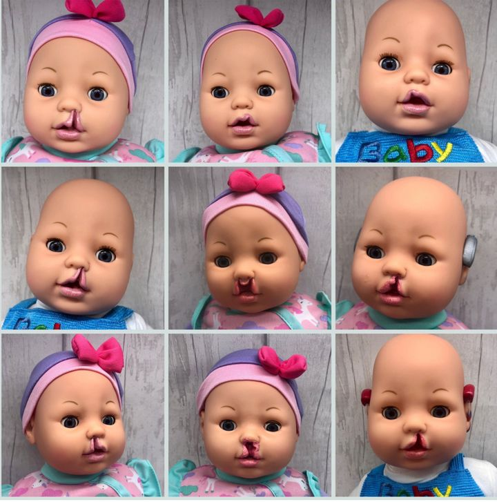 Customized cleft lip dolls from Bright Ears