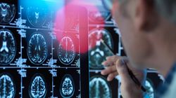 Σύστημα τεχνητής νοημοσύνης κάνει διάγνωση της νόσου Αλτσχάιμερ από τον ήχο της