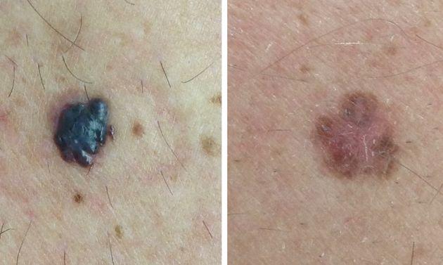 Examples of confirmed melanomas.