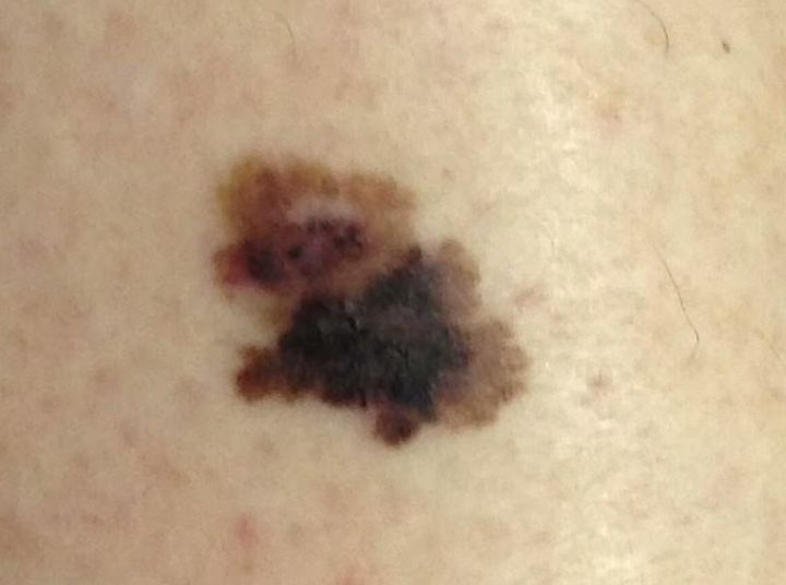 This Is What Melanoma Skin Cancer Looks Like Huffpost Uk Life