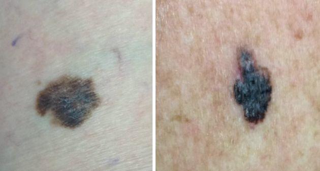 Examples of confirmed melanomas.ma