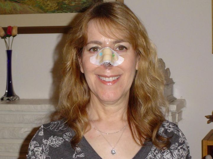 """The author with her """"temporary"""" fake nose."""