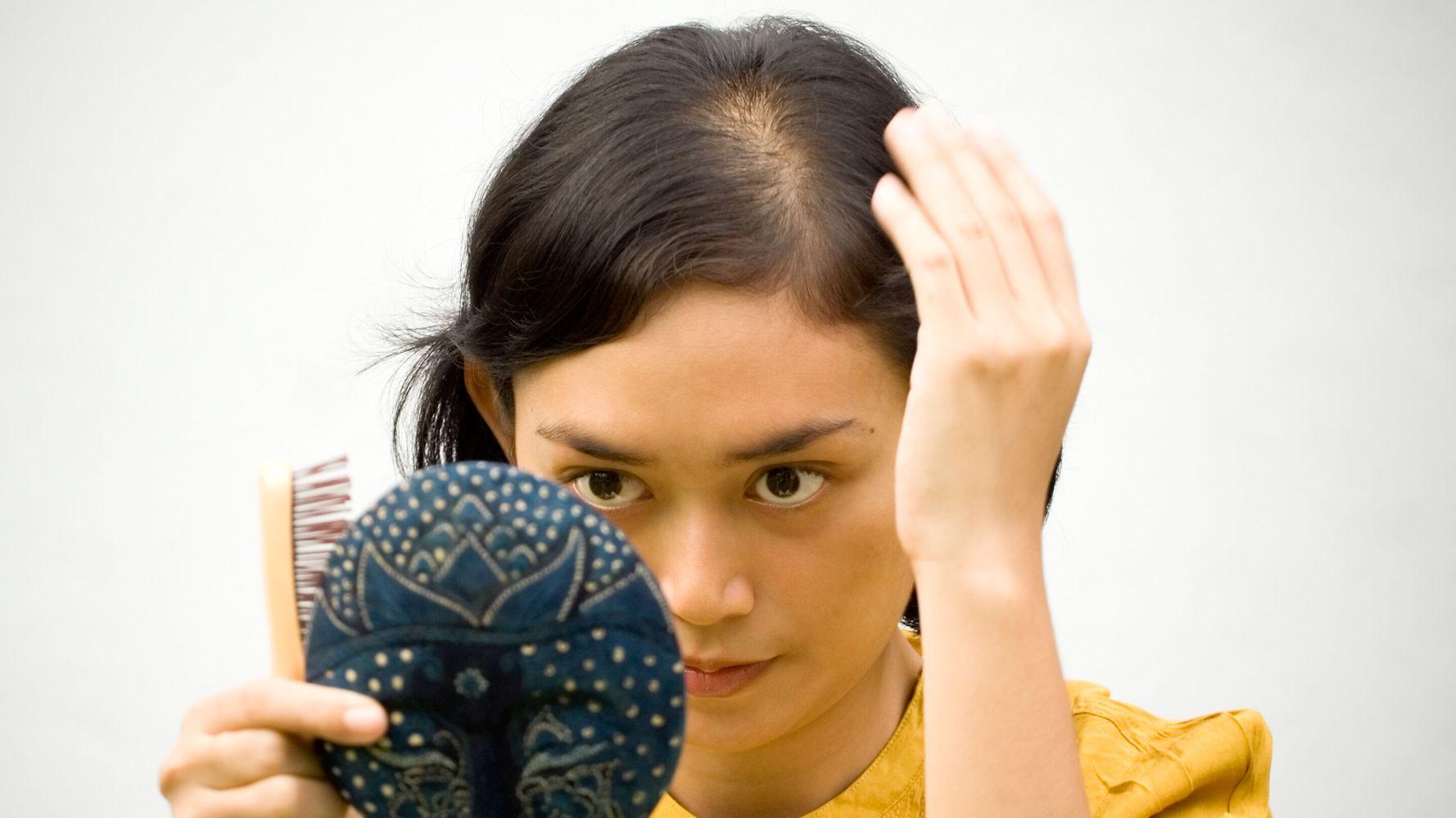 요즘 머리카락이 자꾸 빠지는 이유와 모발 관리 방법 (전문가 팁)