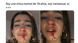 Los Mossos investigan la paliza a una joven trans de 19 años en
