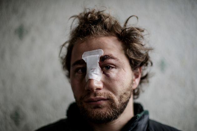 Le photoreporter Ameer al-Halbi blessé pendant la manifestation, le 20 novembre 2020 (Photo SAMEER...