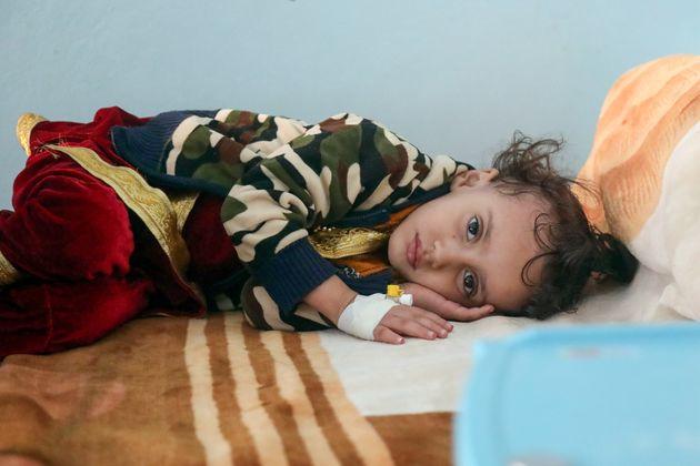 Una niña yemení malnutrida, en un centro sanitario de Taez, el 24 de noviembre de