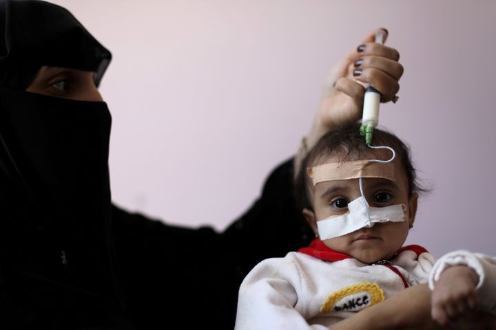A malnourished child being fed in the Houthi-held city of Sanaa, Yemen, earlier this year.