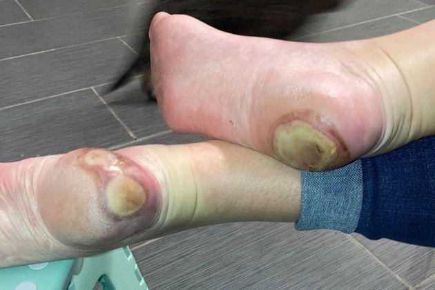 反ワクチン派「腫れた足」写真を拡散⇨新型コロナワクチンの副作用ではなかった
