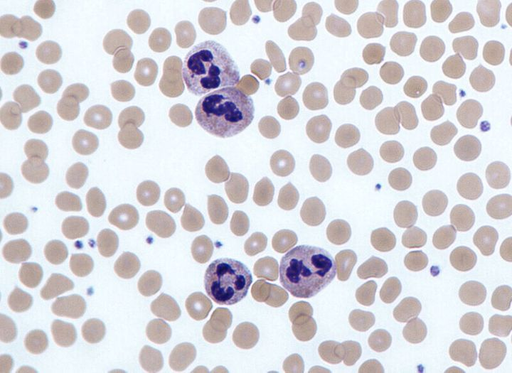 백혈구 가운데 하나인 호중구