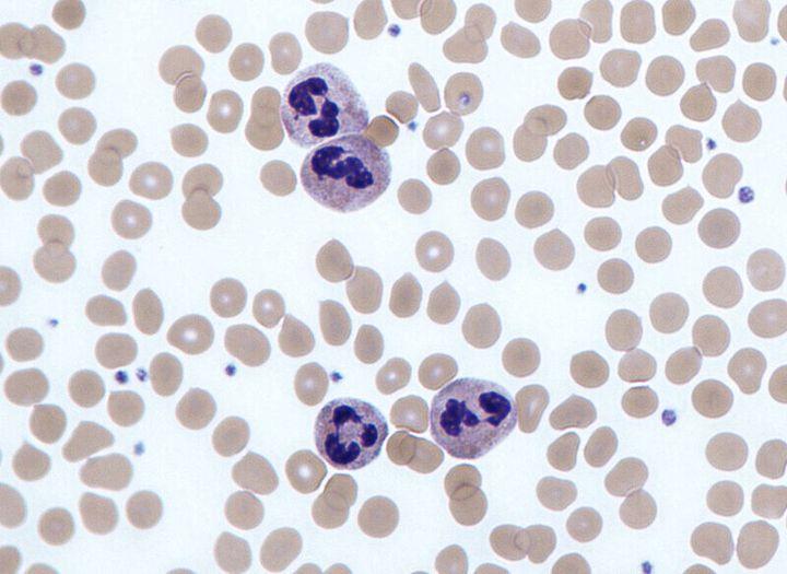 폐암 세포.