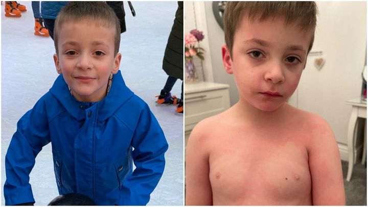 Left: Thomas in 2019. Right: a photo of Thomas taken last week.