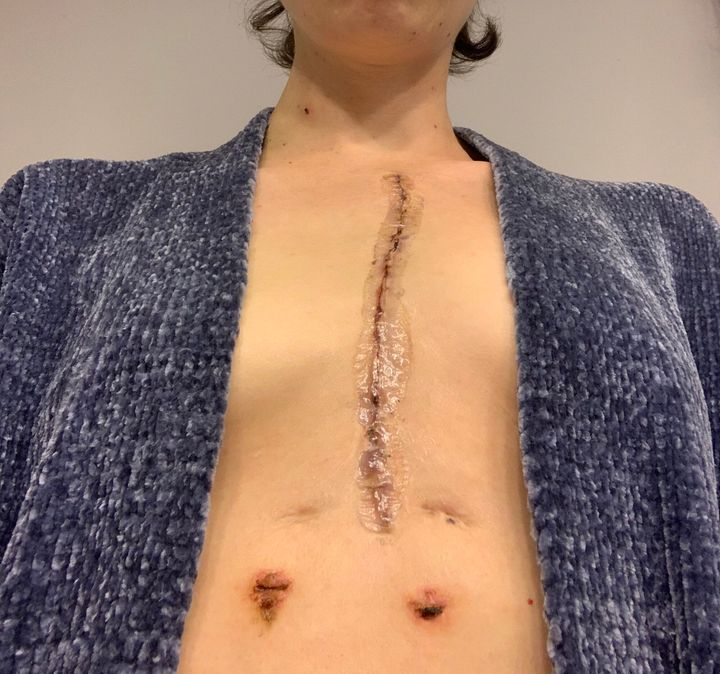The author's median sternotomy and chest tube scars three weeks post-op.