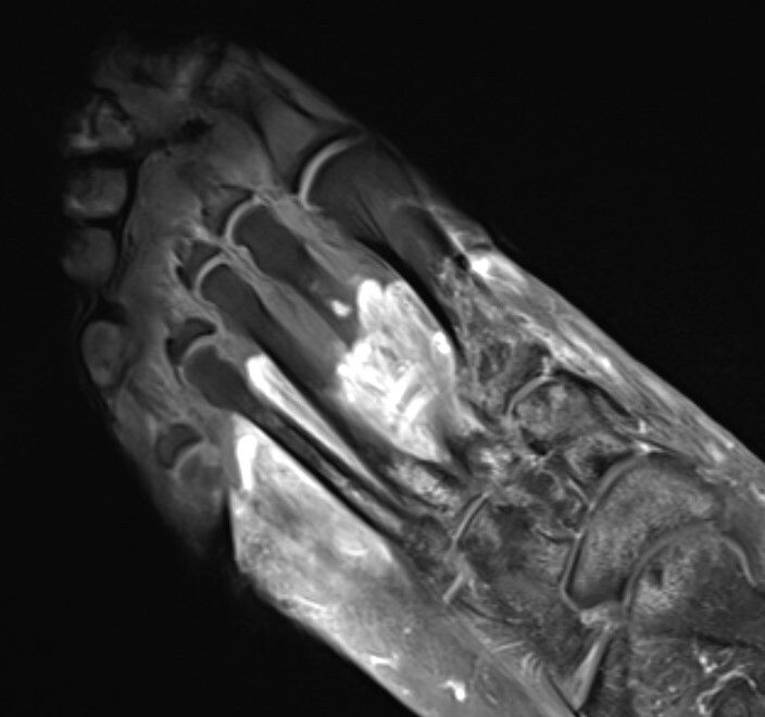 MRI of the foot in a patient with severe Covid-19. The grey part of the foot is devitalized tissue (gangrene).